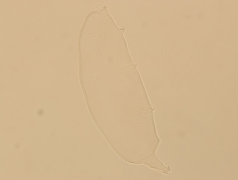 Oreella chugachii